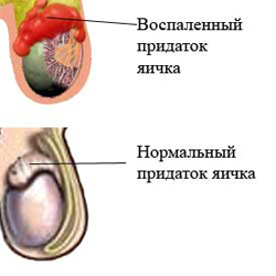 Эпидидимит лечение Киев