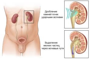 Мочекаменная болезнь лечение Киев