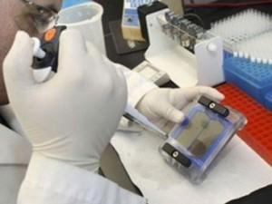 Биохимический анализ крови норма