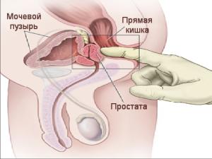 Массаж предстательной железы показания, противопоказания