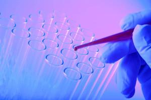 Иммуноферментный анализ крови расшифровка