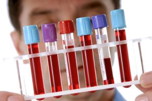 Анализ на онкомаркеры показания